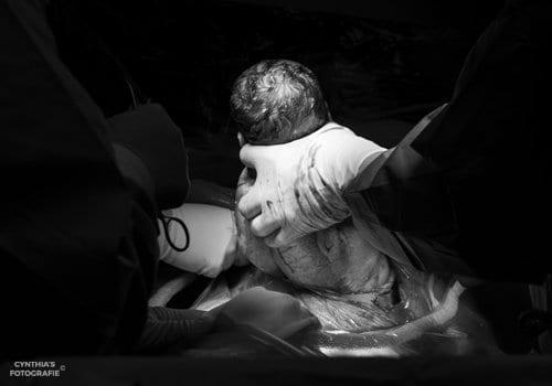 Baby wordt uit de baarmoeder gehaald bij een keizersnede.